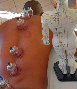 La cupping-thérapie : l'alliée bien-être de votre corps.