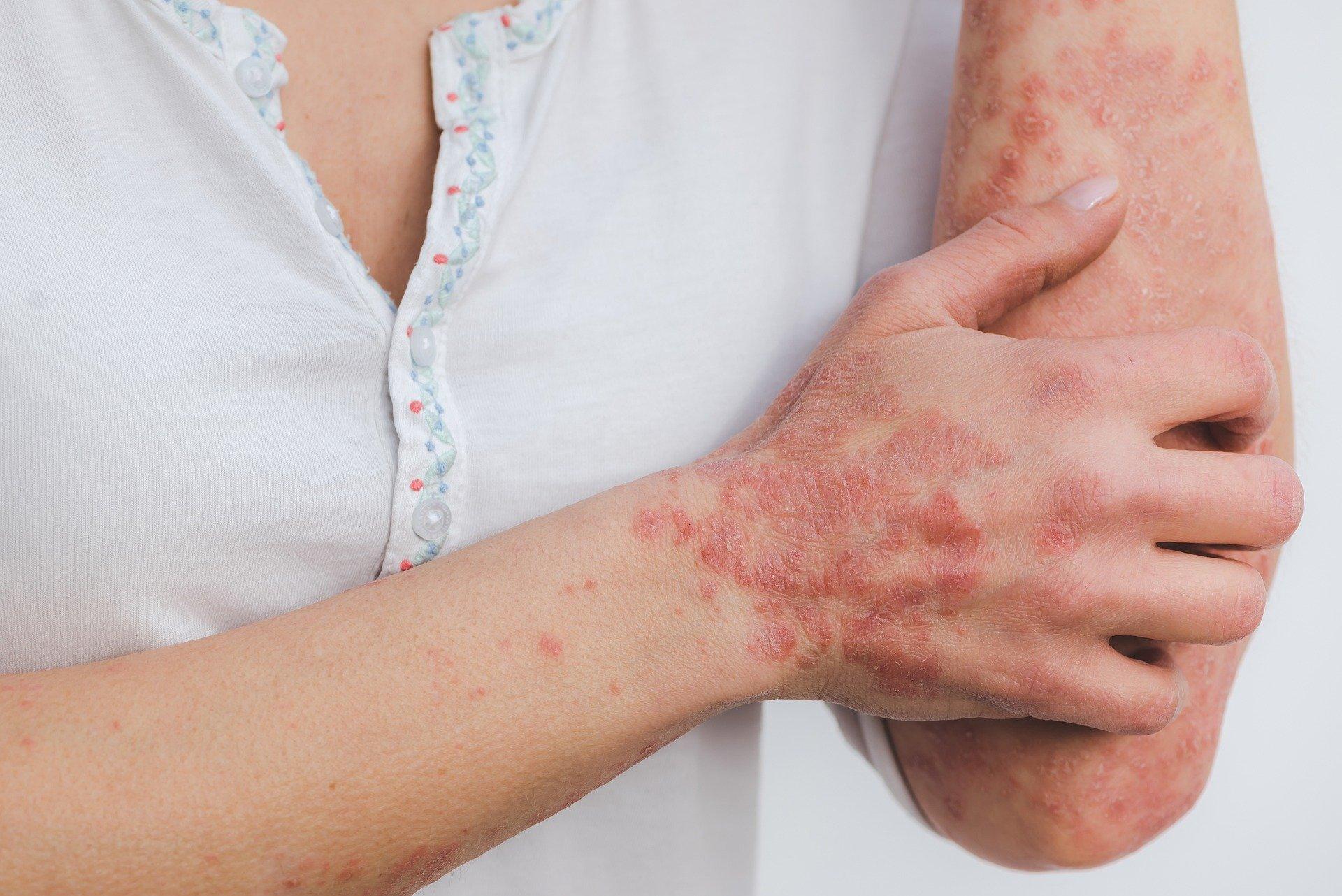 Psoriasis peau